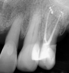 Association between Periodontal Disease and Systemic Disease